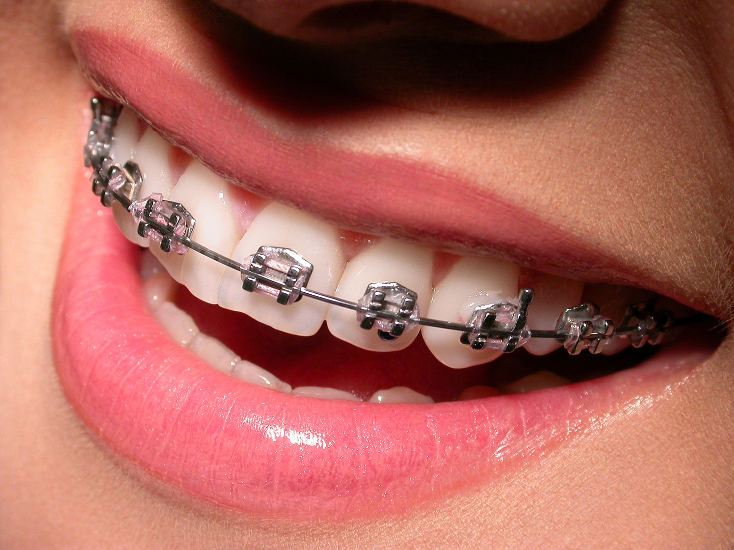 Girl-with-Braces-Smiling